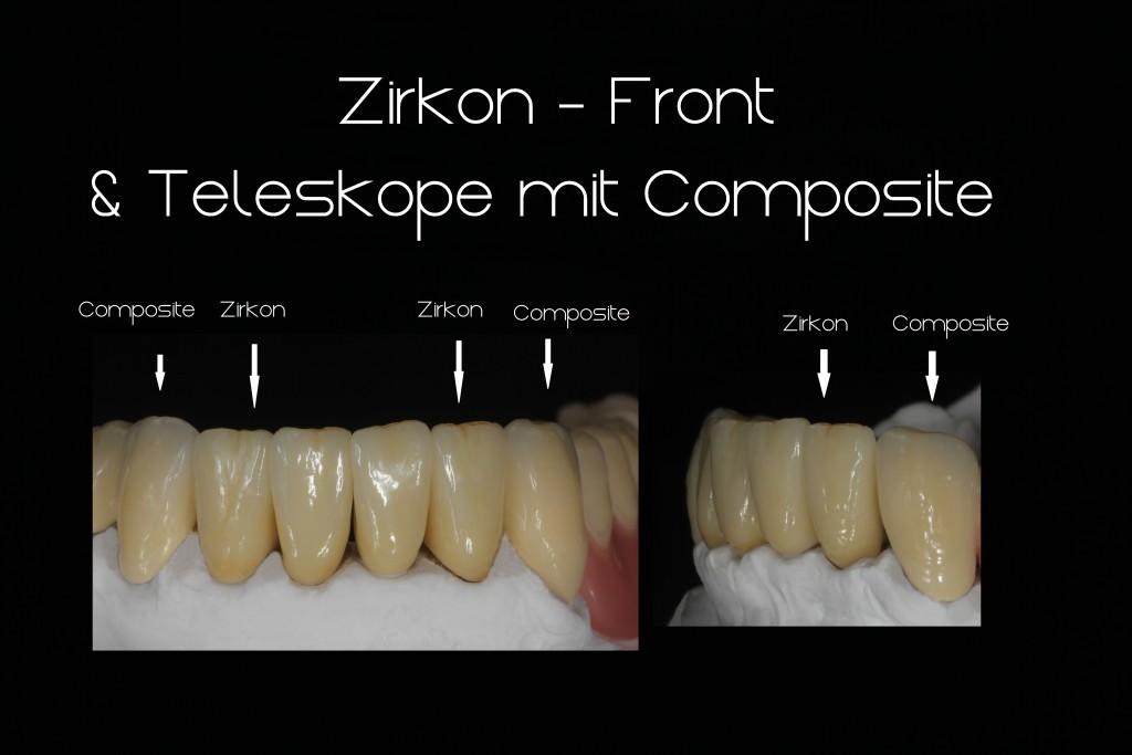 Collage Zirkon & Composite