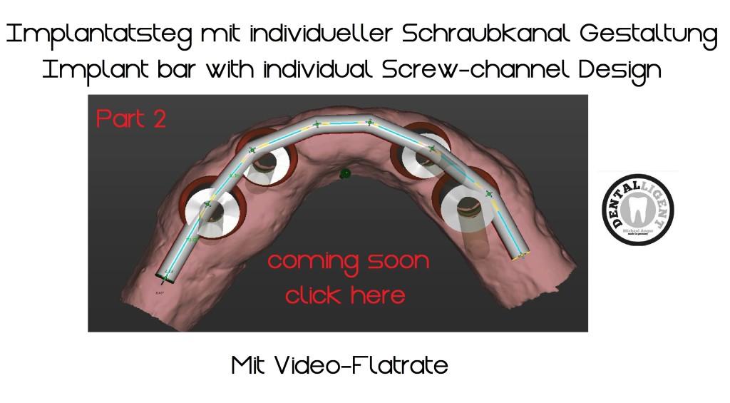 Implantatsteg mit manueller Schraubkanalpositionierung Teil 2 Übersicht