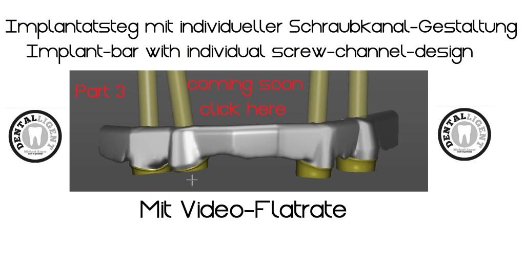 Implantatsteg mit manueller Schraubkanalpositionierung Teil 3 Übersicht