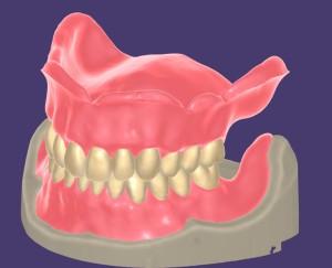 Modul Für Totalprothesen. /  Module for full dentures.