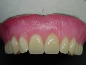 Pic.: 10 The marginal gingival margin is placed in the lower third of the tooth.