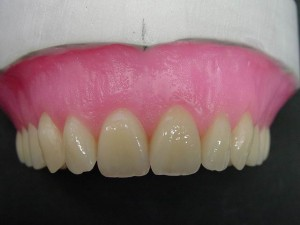 Pic.: 14  It is important that especially the papillae are rounded.
