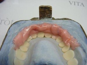 Pic.: 25 ...... and also placed in the labial area.