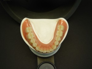 Abb.: 2 Lifelike anterior teeth that fit individually prepared for the patient (Lower Jaw).