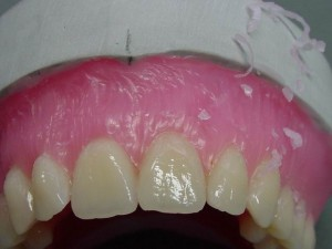Pic.: 9It is important that the interdental spaces are accurately modeled and no wax residue left on the tooth surface.