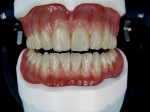 Abb.: 1  Upper / lower total prosthesis with individual gums.