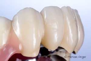 View details of composite veneers view from the left.