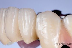 View details of composite veneers view from the right.