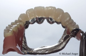 The finished model casting in the Palatal view with bite-stops in metal.