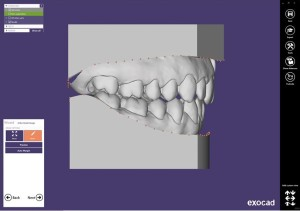 Orthodontische Studienmodelle und Arcivierung.  Orthodontic study models and archiving.