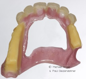 With this template, both the jaw relation as well as the desired aesthetic can be checked and transferred.