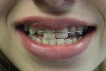 Einarbeitung eines Platzhalters zur Vermeidung von Dreh- und Kippbewegungen, sowie der Mesialwanderung und Elongation der benachbarten Zähne bzw. Antagonisten.