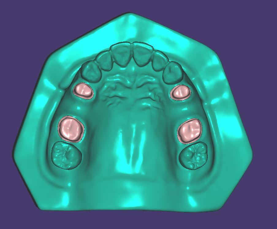 M013 Zweifarbig gedruckt mit herausnehmbaren Zahnstümpfen.