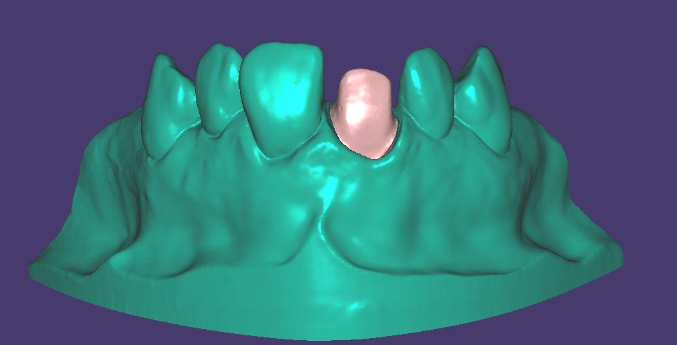 M021 Zweifarbig gedruckt mit herausnehmbarem Zahnstumpf.