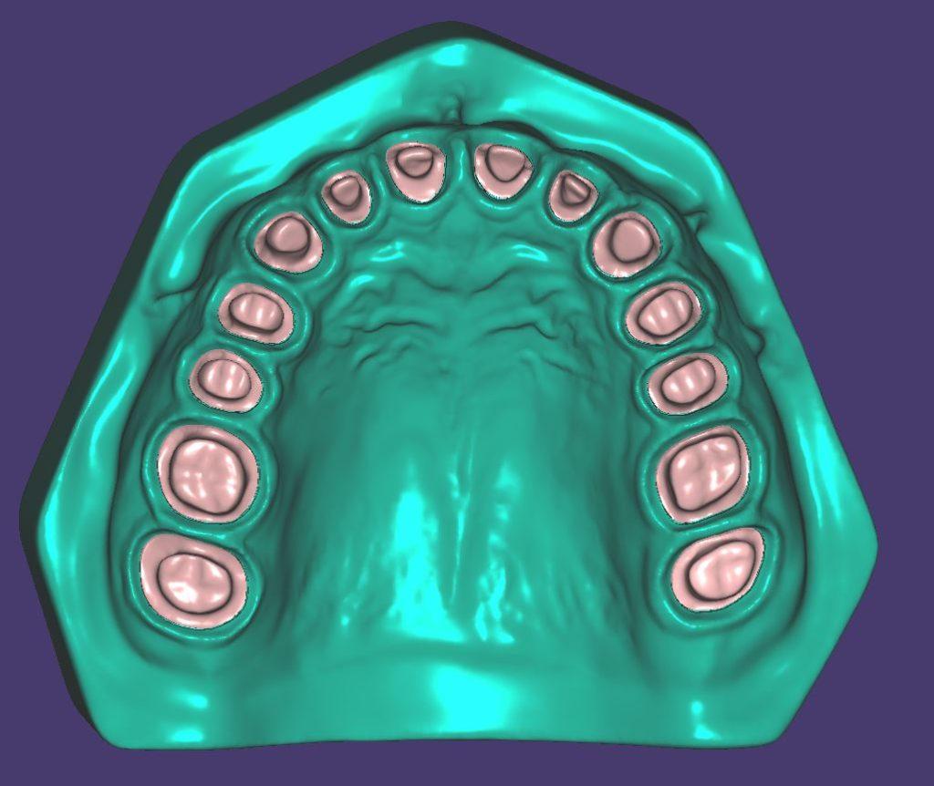 M011Zweifarbig gedruckt mit herausnehmbaren maximalinvasiv präparierten Zahnstümpfen.