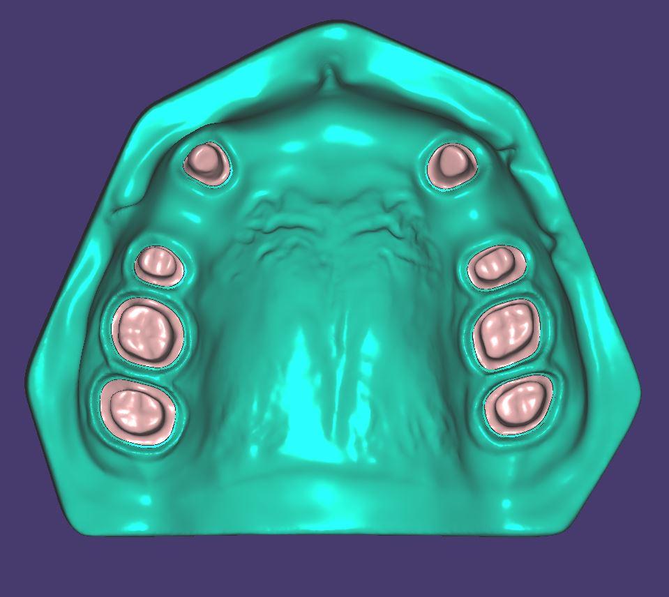M015 Zweifarbig gedruckt mit herausnehmbaren Zahnstümpfen.