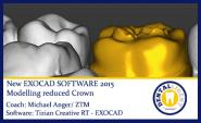 2015-Modelling reduced Crown - Exocad 2015