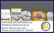 2015-Modellation einer reduzierten Krone - Exocad2015