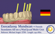 2019-Exocad   Mundscan + Fremde Scandaten All-on-5 WaxUp auf Multi-Unit