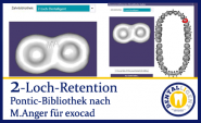 2-hole retention - according to Michael Anger for the Pontic library for exocad