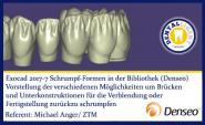 2017-NEW EXOCAD TUTORIAL DENSEO - 7 Schrumpf-Formen in der Bibliothek  (Denseo)