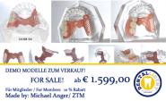 Modell aus klarem Acryl mit PEEK-Modellguss für Geschiebe-Demonstration. Halbseitig fertiggestellt mit Konfektionszähnen.