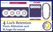 4-hole retention - according to Michael Anger for the Pontic library for exocad