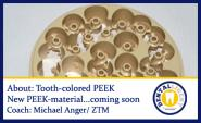 Free full video - About: New tooth-coulored PEEK - New PEEK-material coming soon