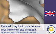 2019-Exocad - Avoid gaps during exocad model casting