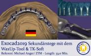 2019-Exocad - Sekundärstege mit dem WaxUp-Tool & TK-Soft