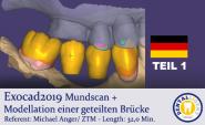 2019-Exocad - TEIL1 - Mundscan + Modellation einer geteilten Brücke
