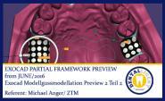 2016-NEW EXOCAD TUTORIAL  - Exocad Modellgussmodellation Preview 2 Teil 2