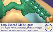 2019 - Exocad model casting lower jaw bracket, end strips, stabilizers