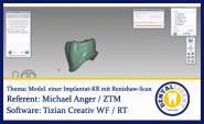 Modellveränderungen bei Modellation einer Implantatkrone mit Renishaw-Scan