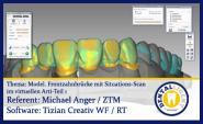 Modellation einer Frontzahnbrücke mit Situations-Scan im virtuellen Arti - Teil 1