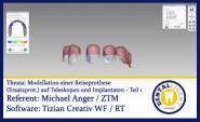 Modellation einer Reiseprothese (Ersatzprothese) auf Teleskopen und Implantaten - Teil 1