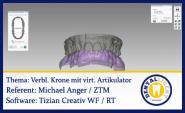 Modellation einer vestibulär verblendeten Krone mit virtuellem Artikulator