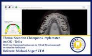 Scan von Champions Implantaten im OK - Teil 2