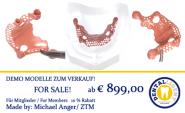 Modell aus klarem Acryl mit rosa PEEK-Sekundärteleskopen und PEEK-Modellguss