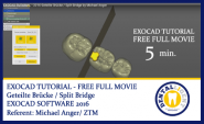 FREE FULL EXOCAD SUPPORT-Video - About: Geteilte Brücke