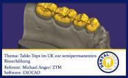2016-EXOCAD TUTORIAL - TABLE TOPS  im UK zur semipermanenten Bisserhöhung