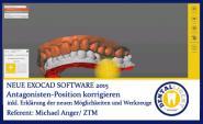 2015-Antagonisten-Position korrigieren - Exocad 2015