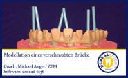 """""""Gratis"""" exocad - Modellation einer verschraubten Brücke"""
