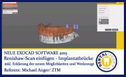 Renishaw-Scan einfügen (Beispiel Implantatbrücke) - Exocad 2015