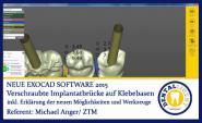 Verschraubte Implantatbrücke auf Klebebasen - Exocad 2015