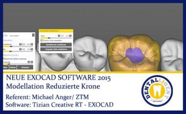 Modellation einer reduzierten Krone - Exocad2015