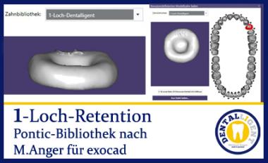 1-Loch-Retention - nach Michael Anger für die Pontic-Bibliothek für exocad