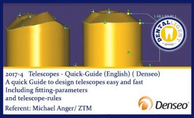ENGLISH -NEW EXOCAD TUTORIAL DENSEO 2017-4 - Telescopes - Quick-Guide  (English)