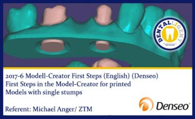ENGLISH - NEW EXOCAD TUTORIAL DENSEO 2017-6 Modell-Creator First Steps (Denseo)