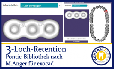 3-Loch-Retention - nach Michael Anger für die Pontic-Bibliothek für exocad